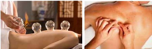 cupping and tuina massage after acupuncture