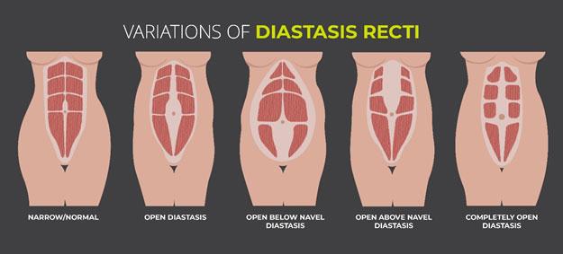 Diastasis Recti & Pelvic Floor Physiotherapy
