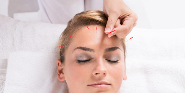 Functional Integrated Acupuncture