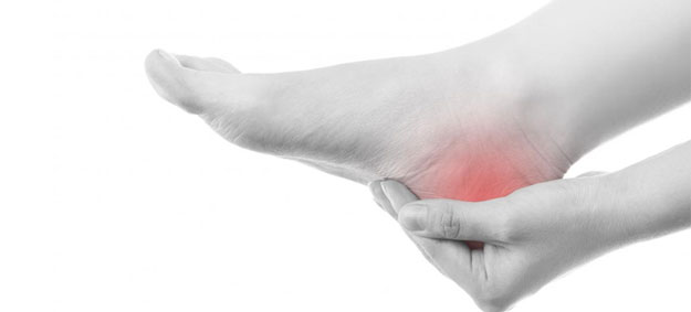 How Can You Treat Plantar Fasciitis?