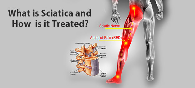 What is Sciatica and How Is It Treated?
