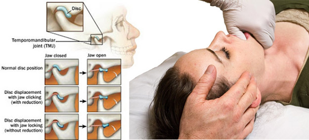 How You Can Treat TMJ Disorders With Osteopathy
